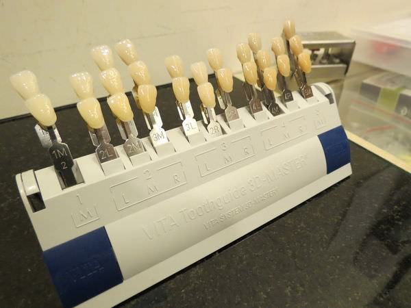 悅庭牙醫診所, 牙齒比色
