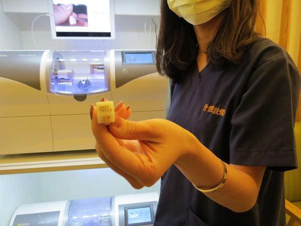 悅庭牙醫診所, 牙體瓷塊